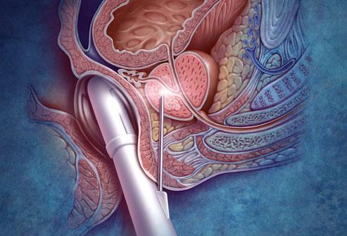Prostat İltihabı (Prostatit) Nedir?