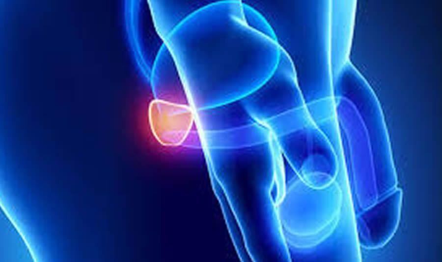 Prostat İltihabı